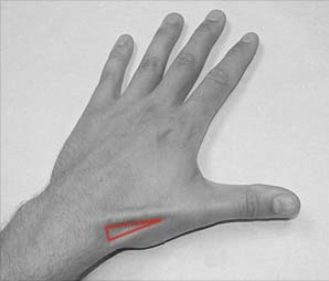 Fig 1.0 - The left anatomical snuffbox. Note its lateral position on the dorsum of the hand