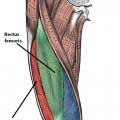 Fig 1.1. The vastus muscles of the thigh. The vastus intermedialis lies deep  to the other muscles, and is not visible