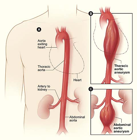 the aorta - branches - aortic arch - teachmeanatomy, Human Body