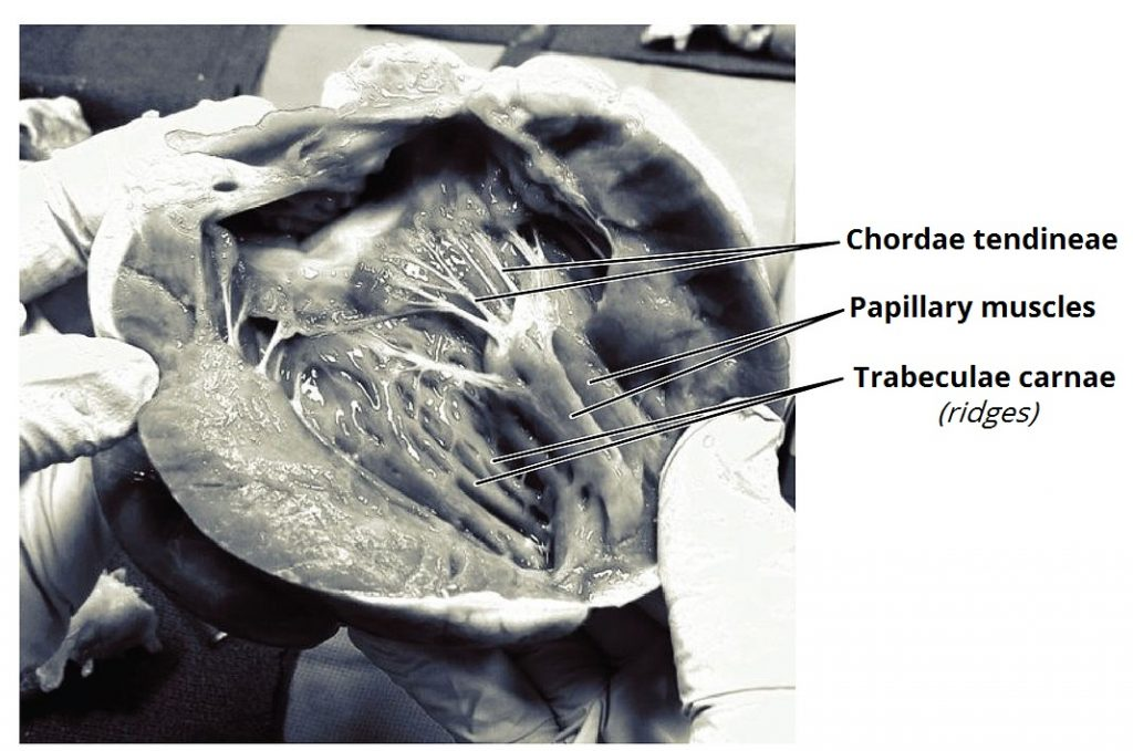 Fig 2 - Frontal section of the heart, showing the attachment of the papillary muscles to the tricuspid and mitral valves.