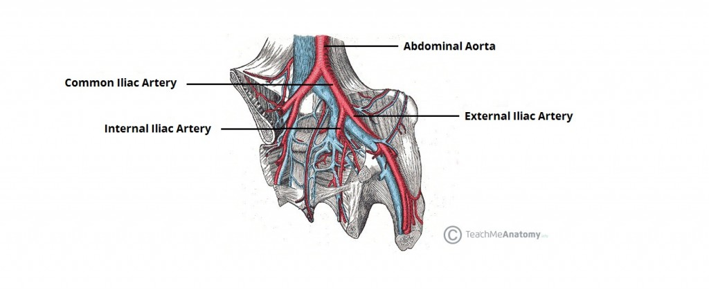 Figure 1 - The bifurcation of the common iliac artery into internal and external branches.