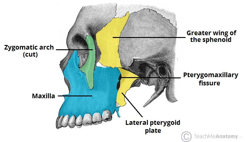 Fig 1.0 - The bony features of the infratemporal fossa. The ramus of the mandible has been removed in this image.