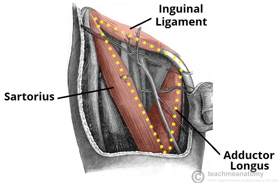 Fig 1.1 - The borders of the right femoral triangle.
