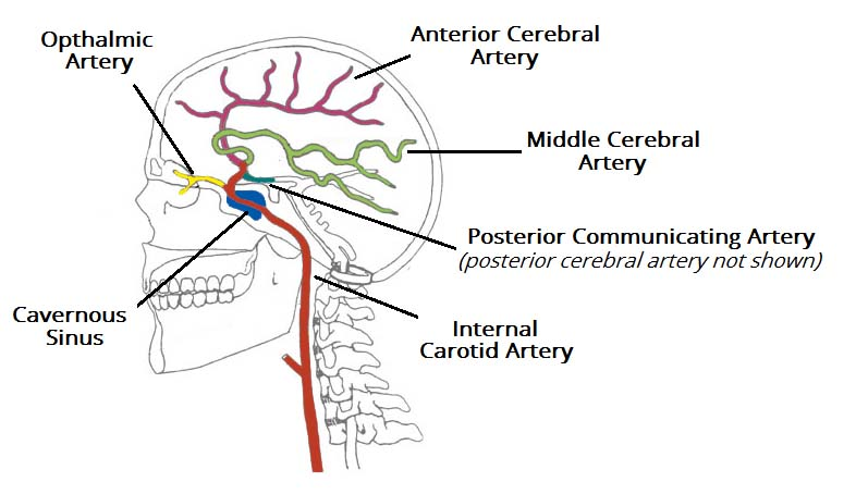 Arterial Supply to the Brain - Carotid - Vertebral ...