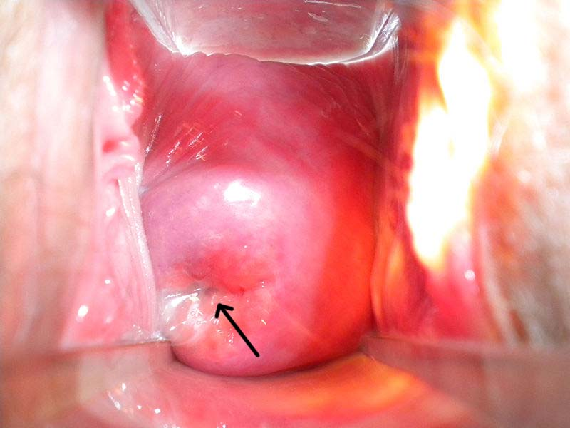 Fig 1.5 - The ectocervix, visible via a speculum inserted into the vagina. The external os is marked with an arrow.