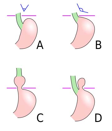 Fig 1.6 - Classifications of hiatus hernias. is the normal anatomy, B is a pre-stage, C is a sliding hiatal hernia, and D is a rolling type.