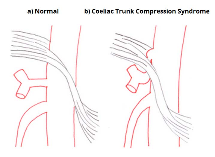 Fig 1.4 - Coeliac trunk compression syndrome.