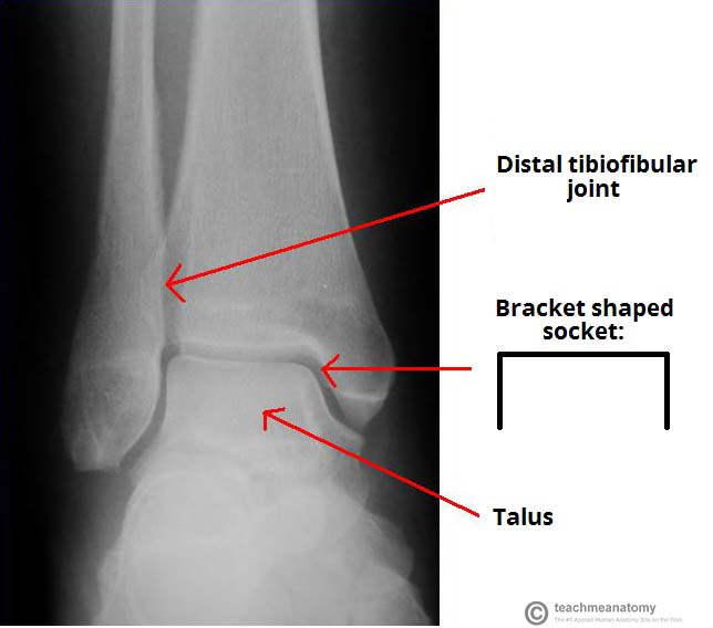 Fig 1.0 - X-ray of a normal ankle joint. Note the bracket shaped socket formed by the tibia and fibula.