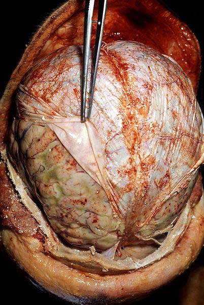 Fig 1.3 - Autopsy of a patient with meningitis. The dura mater is being retracted to show a grossly swollen cerebrum with pus accumulation.