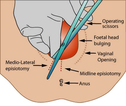 Fig 1.5 - An episiotomy is delivered to avoid tearing of the perineum and/or the pelvic floor. There are two different episiotomies that can be performed.