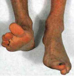 Fig 1.2 - Footdrop, a result of common fibular, or deep fibular nerve damage