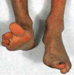 Fig 1.2 - Footdrop, a result of common fibular, or deep fibular nerve damage