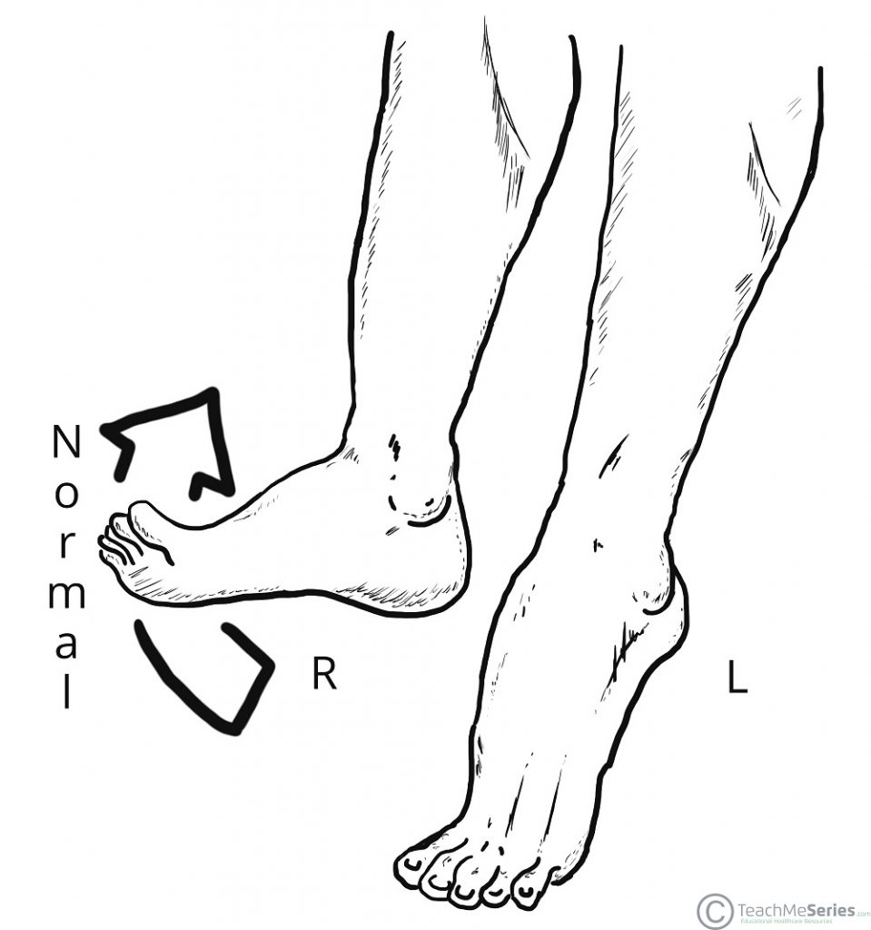 Heel To Toe >> Walking And Gaits Stages Teachmeanatomy