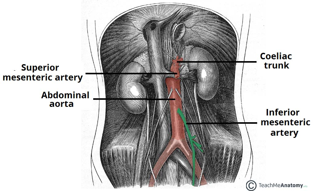 Fig 1.0 - The origin of the IMA from the abdominal aorta. It is the third major branch.