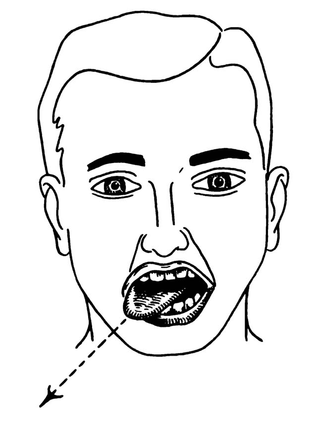 Fig 1.2 - Right hypoglossal nerve palsy, characterised by deviation of the tongue to the right.