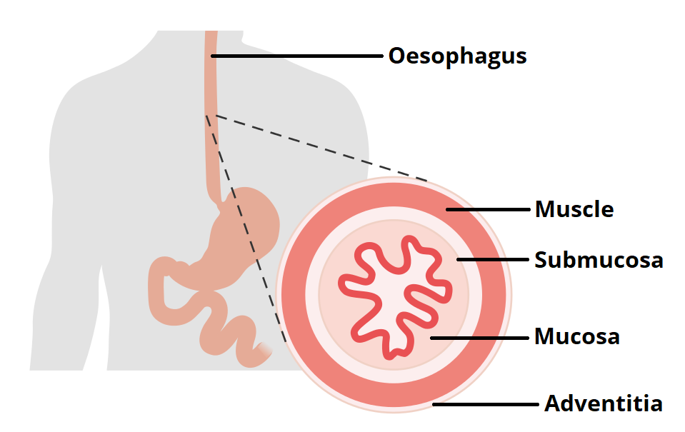 fig 2 – the layers of the oesophagus  the muscle layer is further divided  into an outer longitudinal layer and inner circular layer