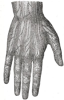 Fig 1 - The lymphatic vessels of the hand. They give converge to produce the superficial lymphatic vessels of the upper limb.