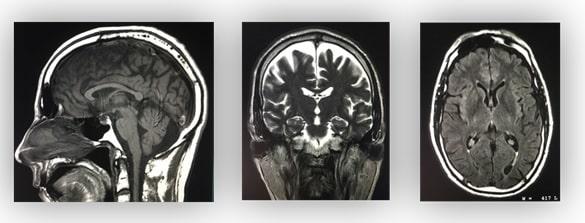Magnetic Resonance Imaging (MRI) Scanning - Principles