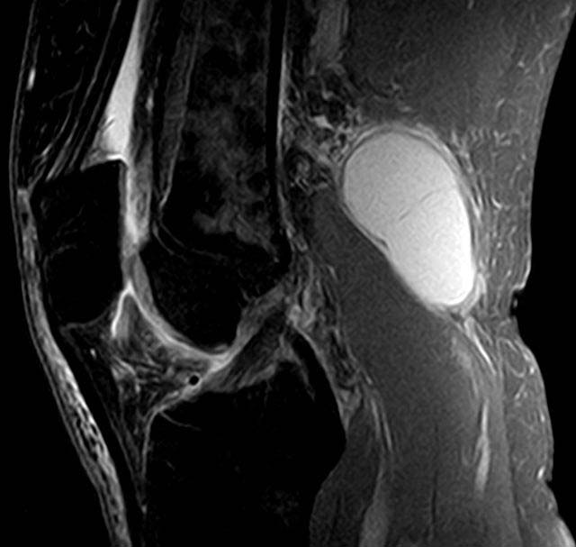 Fig 1.2 - MRI Scan of a Baker's cyst.