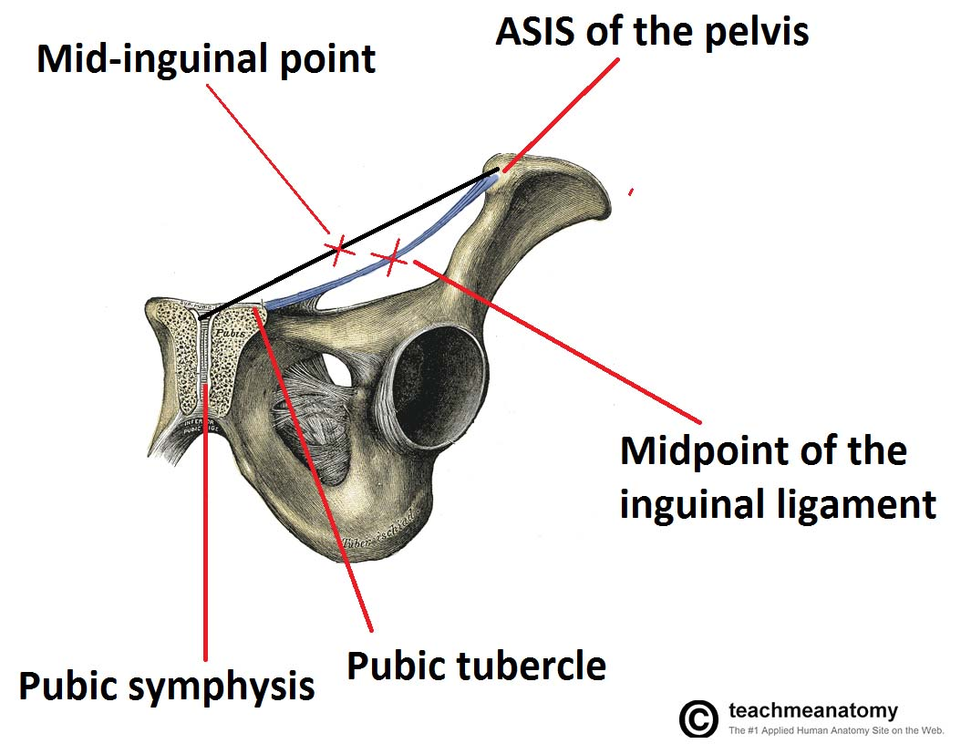 Fig 3 - Coronal view of the pelvis, demonstrating the mid-inguinal point and the midpoint of the inguinal ligament