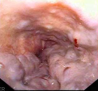Fig 1.3 - Endoscopic view of oesophageal varices