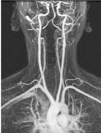 Fig 1.0  - Arteriogram of the arterial supply to the CNS.