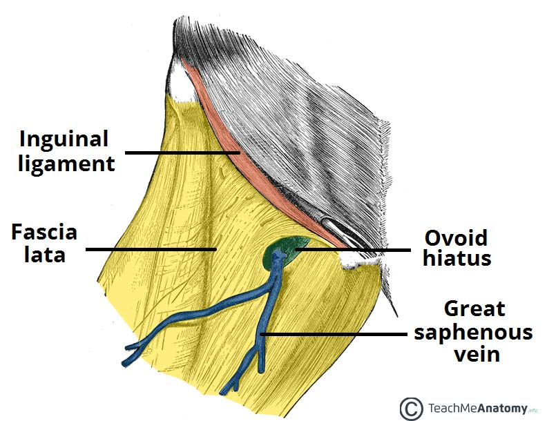 fig 1 – the ovoid hiatus of the fascia lata