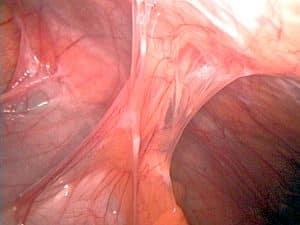 Fig 1.5 - Peritoneal adhesions
