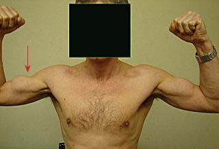 Fig 2 - Popeye sign, resulting from rupture of the biceps brachii muscle.