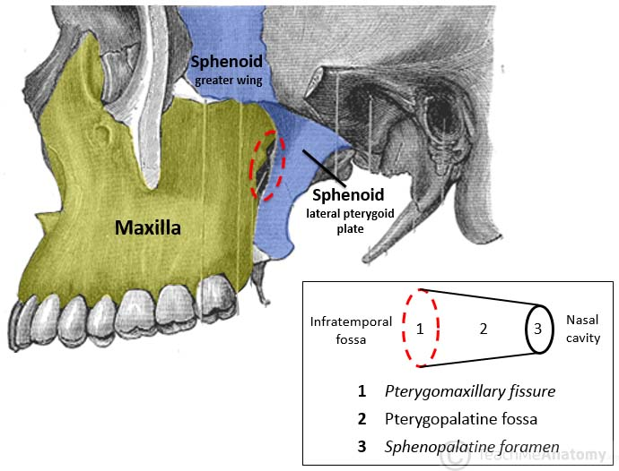 Fig 1.0 - Left infratemoporal fossa demonstrating the opening of the pterygopalatine fossa (circled in red). Note: the zygomatic arch has been removed in this image.