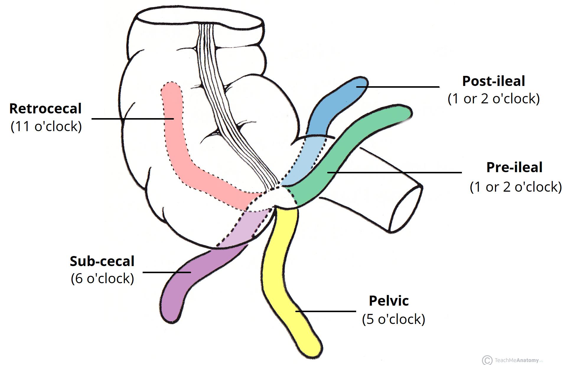 The Appendix - Retrocecal - Arterial supply - Appendicitis ...