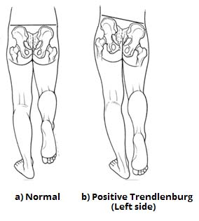 Fig 1.1 - Positive Trendelenburg test, a sign of left superior gluteal nerve palsy.