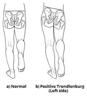 Fig 1.1 - Positive Trendelenburg test, a sign of left superior gluteal nerve palsy.