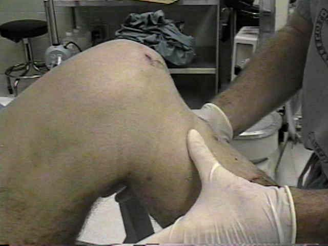 Fig 1.5 - A positive posterior drawer test, signifying damage to the posterior cruciate ligament