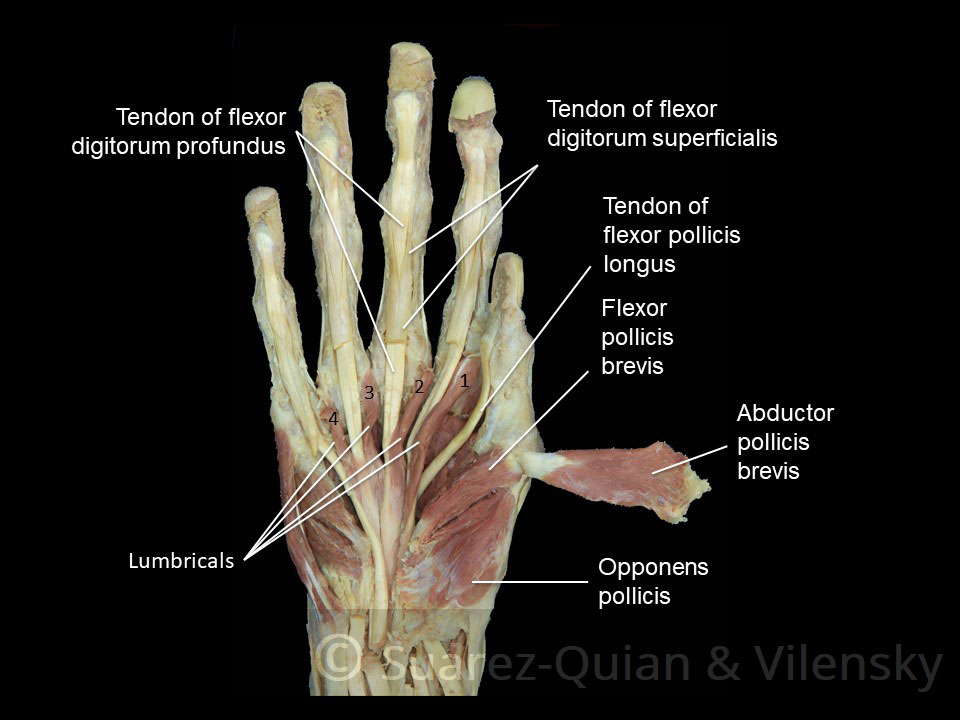 The Muscles Of The Hand Thenar Hypothenar Teachmeanatomy
