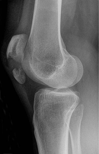 Fig 1.1 - Radiograph of patella fracture. Note the displacement of the proximal and distal fragments.