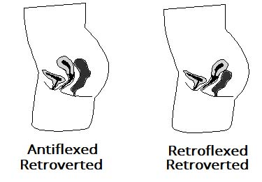 Fig 1.2 - The two types of retroverted uterus. Note how the main body of the uterus lies directly above the vagina, increasing the risk of prolapse.