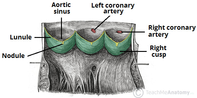 Fig 3 - The aortic valve cusps, aortic sinuses, and the origin of the coronary arteries.