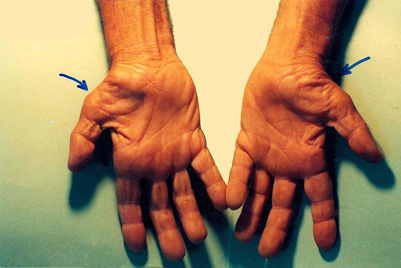 Fig 3 - Thenar muscle wasting, secondary to carpal tunnel syndrome.