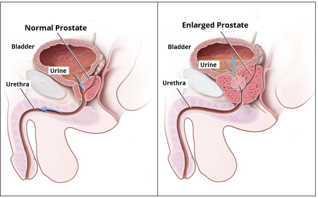 Fig 1.1 - Urine flow in benign prostatic hyperplasia.