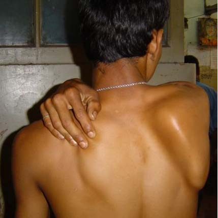 Fig 3 - Injury to the long thoracic nerve produces a winged appearance