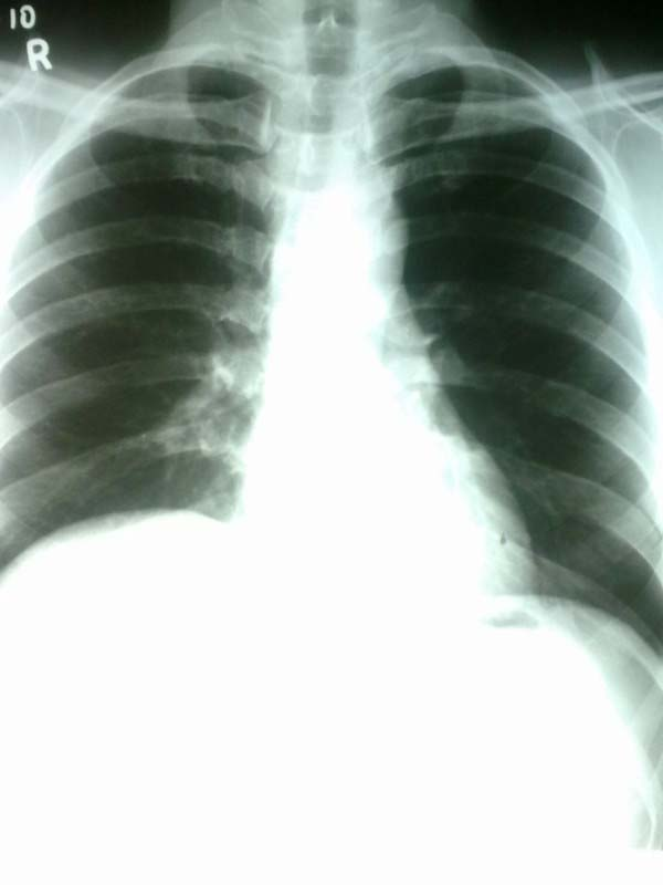 Fig 1.3 - Chest x-ray, showing paralysis of the right hemidiaphragm.
