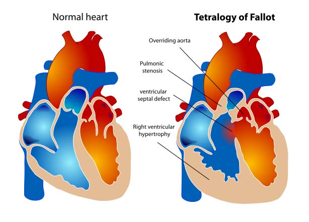 Fig 4 - The four structural defects in Tetralogy of Fallot.